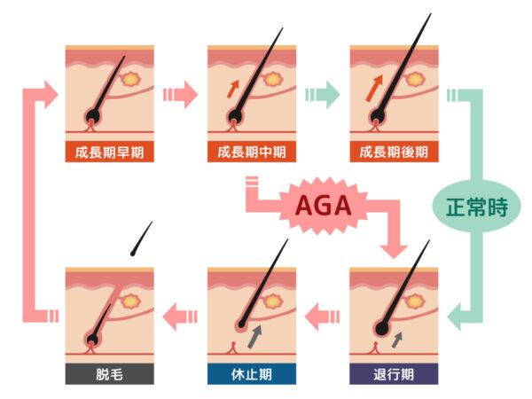 AGAによるヘアサイクルの乱れ