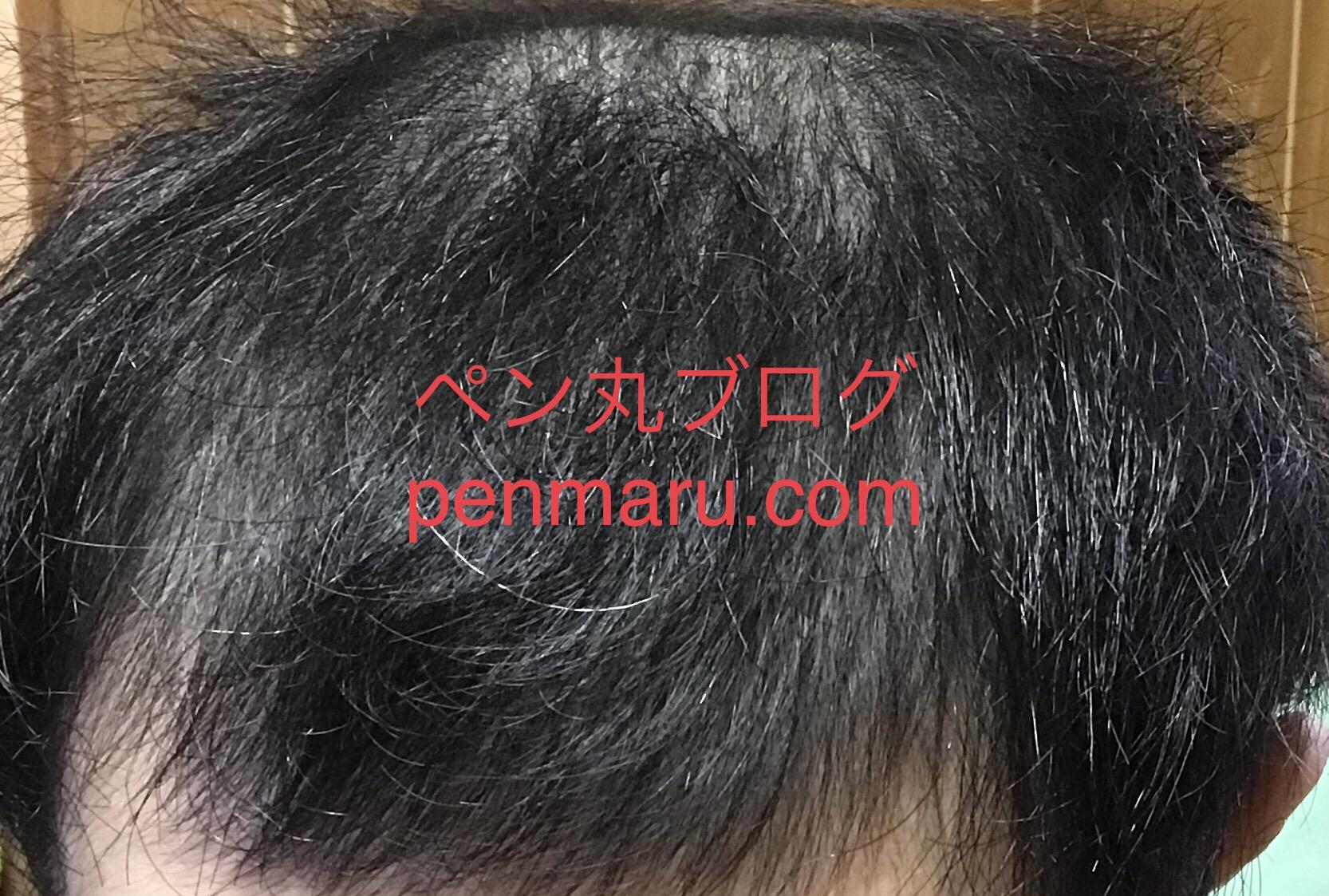薄毛対策のAGAの治療の経過報告